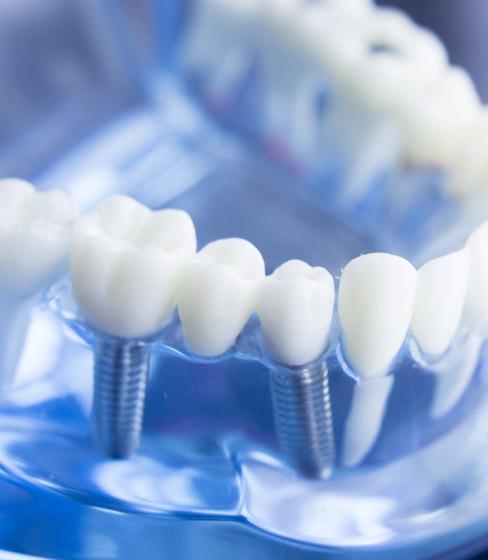 implantes dentales en Panamá