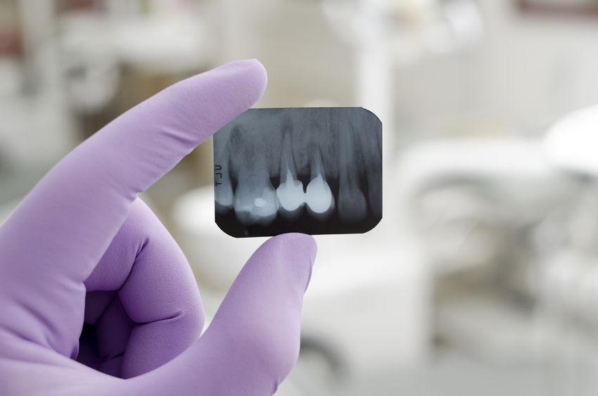 Radiografía dental digital en Panamá