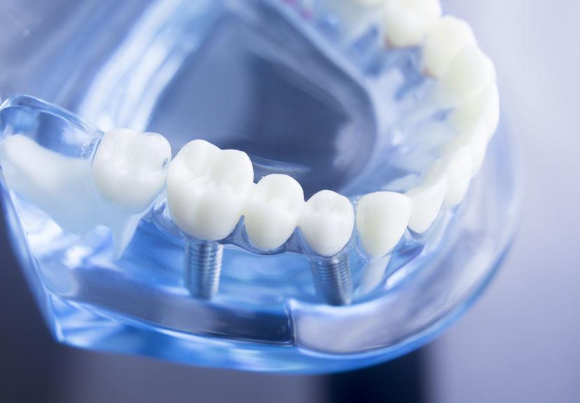 Dental Implant in Panama