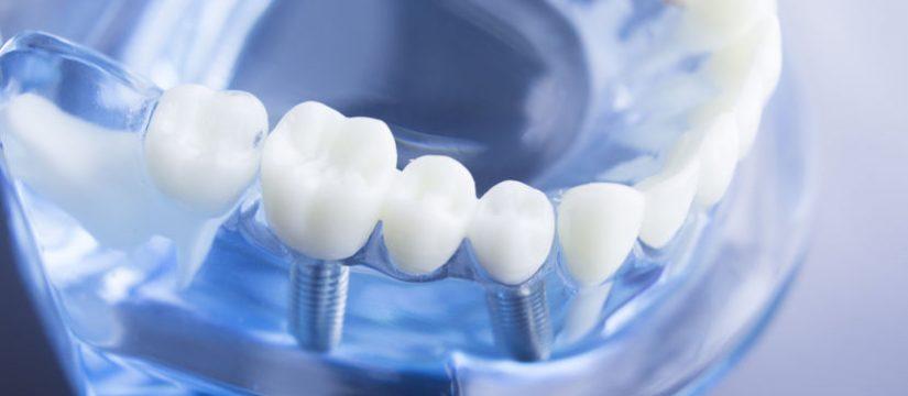 Implante Dental en Panama