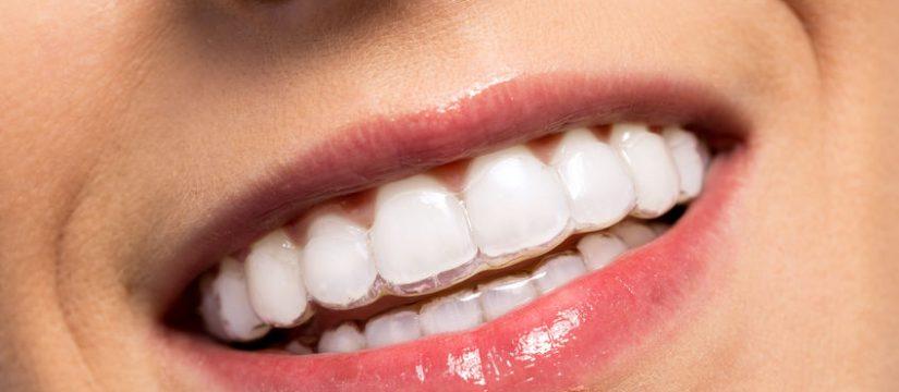 Teeth straightening dentist Panama