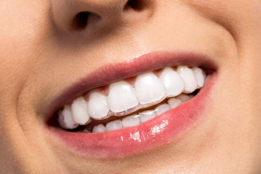 Tratamientos de ortodoncia en Panamá