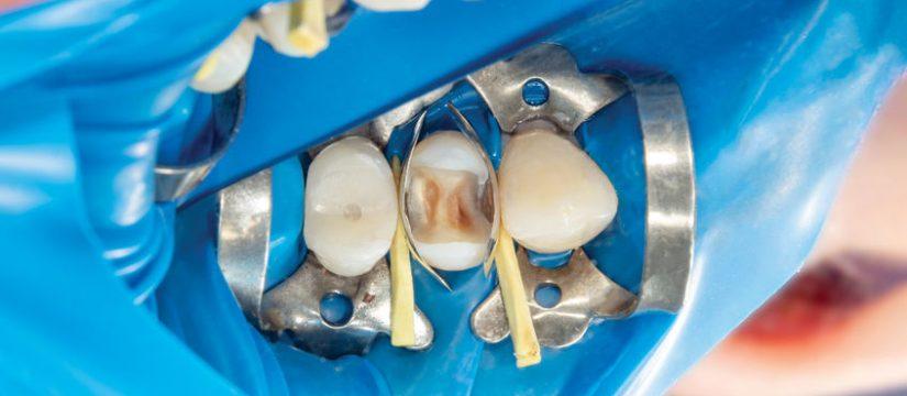 Calzas dentales en Panamá