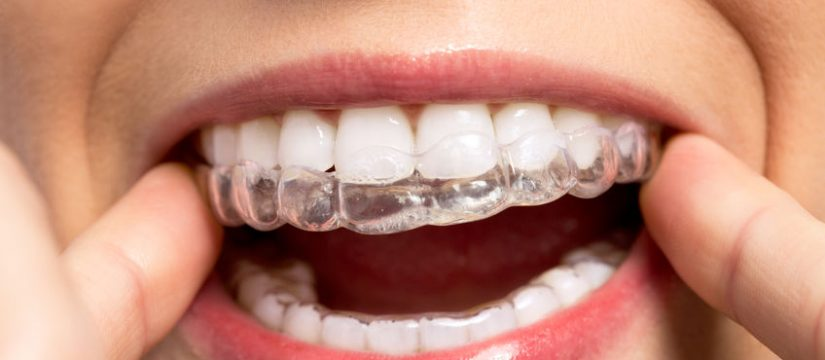 Invisible orthodontic aligners Panama