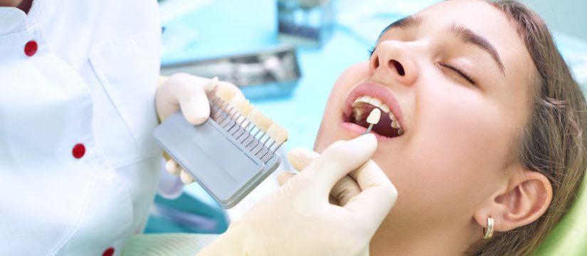 Beneficios de los implantes dentales en Panamá