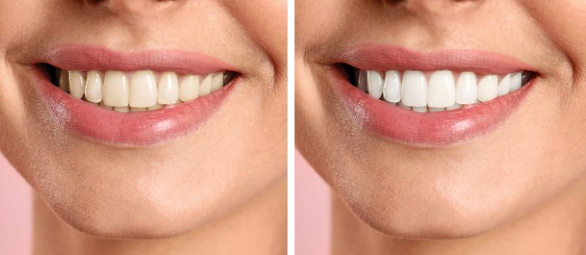 Teeth whitening and aesthetics in Panama