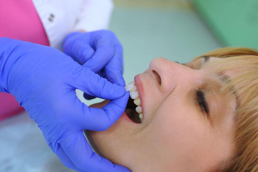 ¿Cuánto cuestan las carillas dentales en Panamá?