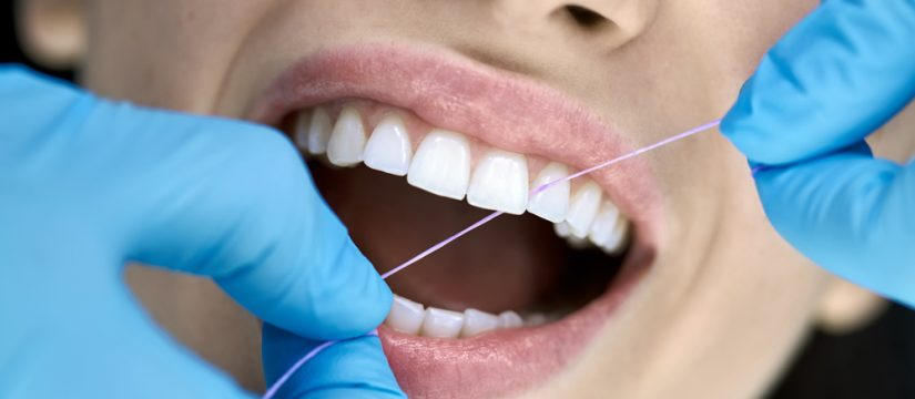 Is Dental Cleaning Important?