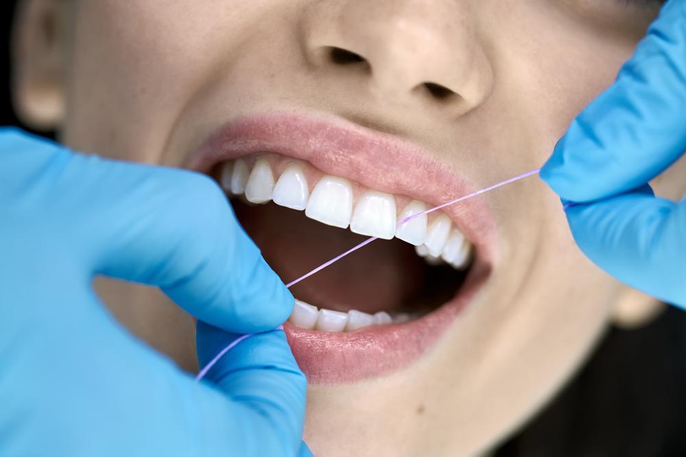 ¿Es Importante la limpieza dental?