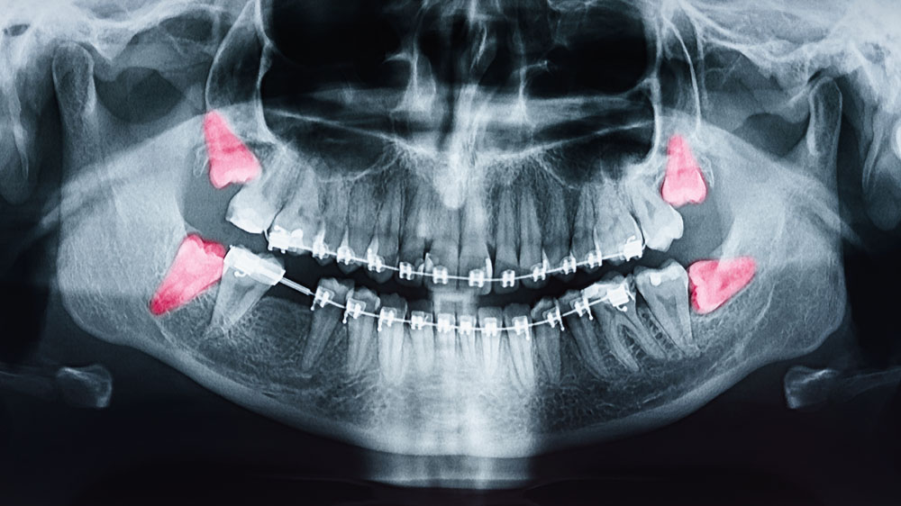 Erupted Wisdom Tooth Extraction in Panama