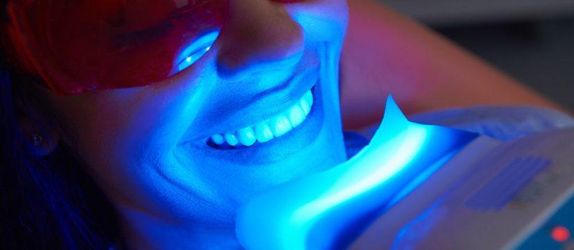 Limpieza dental y blanqueamiento Panama